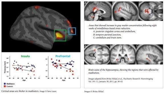 mindfulness-effetti-cervello-